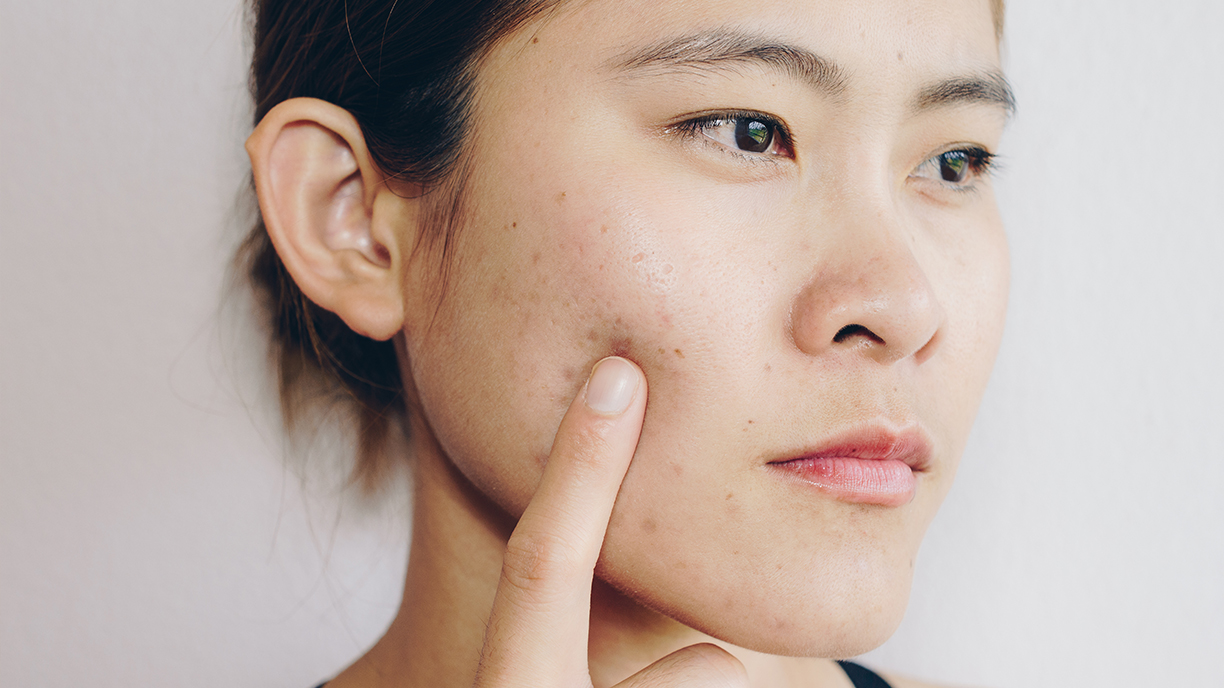 Rid acne to quickest way of get the What can